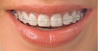 Orthodontic Options Clarity Braces