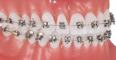 Orthodontic Options Damon Brackets