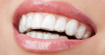 Orthodontic Options Invisalign