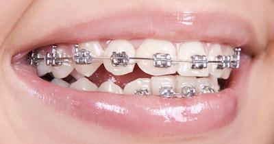 Orthodontic Metal Bracket