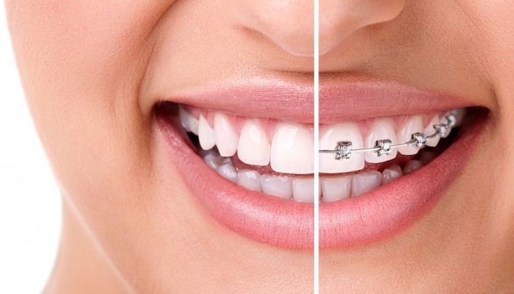 Utah Invisalign and Clarity Braces