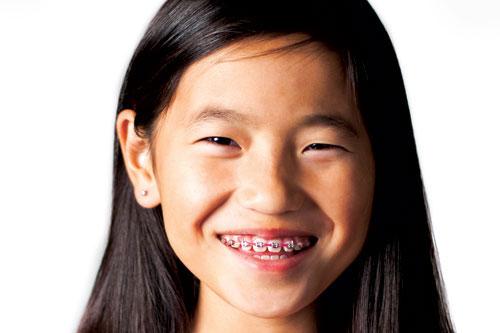 Phase 2 Orthodontics